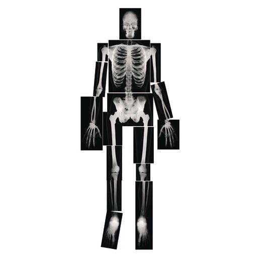 Image of Human X-Rays - Set of 18