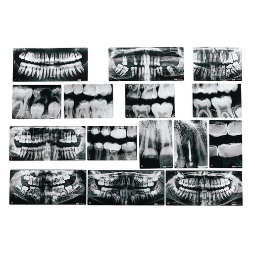 Image of Dental X-Rays Set of 15 with Chart