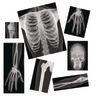 Human X-Rays - Set of 18